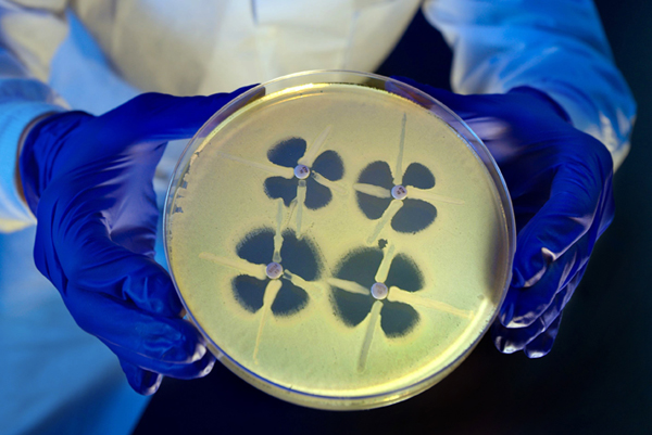 Petri dish showing effects of antibiotics on bacterial culture